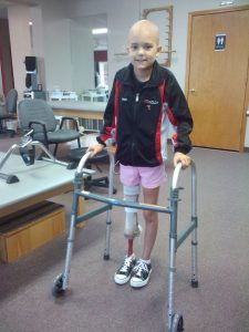 ***STRICT ONLINE EMBARGO UNTIL 00.01AM GMT THURSDAY 23RD JUNE 2016*** *** EXCLUSIVE - VIDEO AVAILABLE *** UNSPECIFIED, UNDATED: Gabi Shull during her childhood. AN AMPUTEE schoolgirl who lost a leg to cancer has defied the odds to become a competitive dancer. When ballerina Gabi Shull had her leg amputated she feared she would never dance again. But thanks to groundbreaking 'rotationplasty' surgery, the 14-year-old bone cancer survivor has been able to get back on her toes. Gabi was diagnosed with osteosarcoma in March 2011, when she was just nine-years-old. Her diseased knee was removed and her foot was rotated 180 degrees and reattached to her upper leg – with her ankle serving as her knee. Gabi was fitted with a prosthetic lower leg and took her first steps a year later. Now Gabi, from Missouri, America, can bend and flex her prosthesis by moving her foot and is now encouraging others to 'live their dreams' and 'never give up'. PHOTOGRAPH BY Andrew Thomas / Barcroft Images London-T:+44 207 033 1031 E:hello@barcroftmedia.com - New York-T:+1 212 796 2458 E:hello@barcroftusa.com - New Delhi-T:+91 11 4053 2429 E:hello@barcroftindia.com www.barcroftimages.com