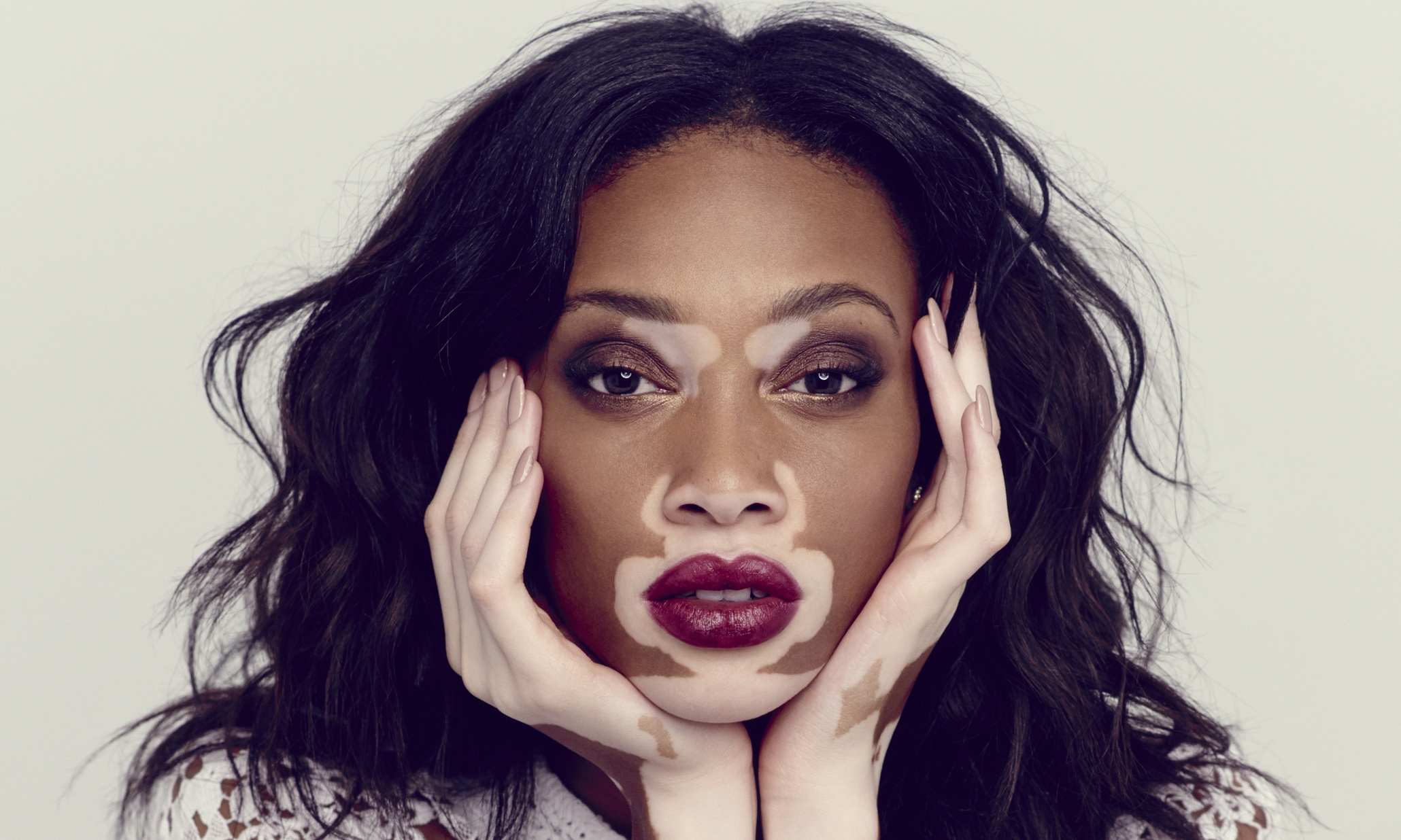 Model Winnie Harlow Speaks Beyond Colour: 'Yes, I'm A Strong, Black Woman, But I'm Also A Strong Woman'