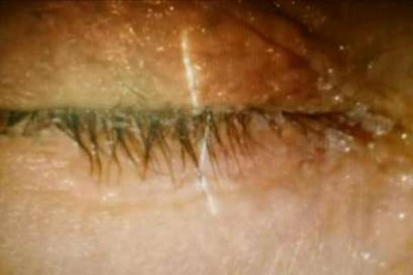 Woman almost goes blind after mistaking super glue for eye drops.